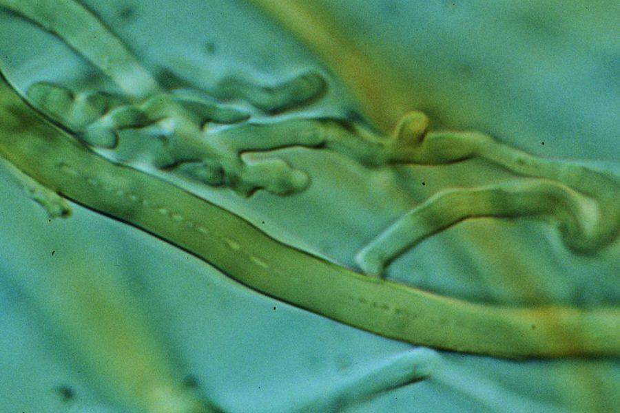 Ein mikroskopische Bild der Pilzhyphen I mikrobalpina